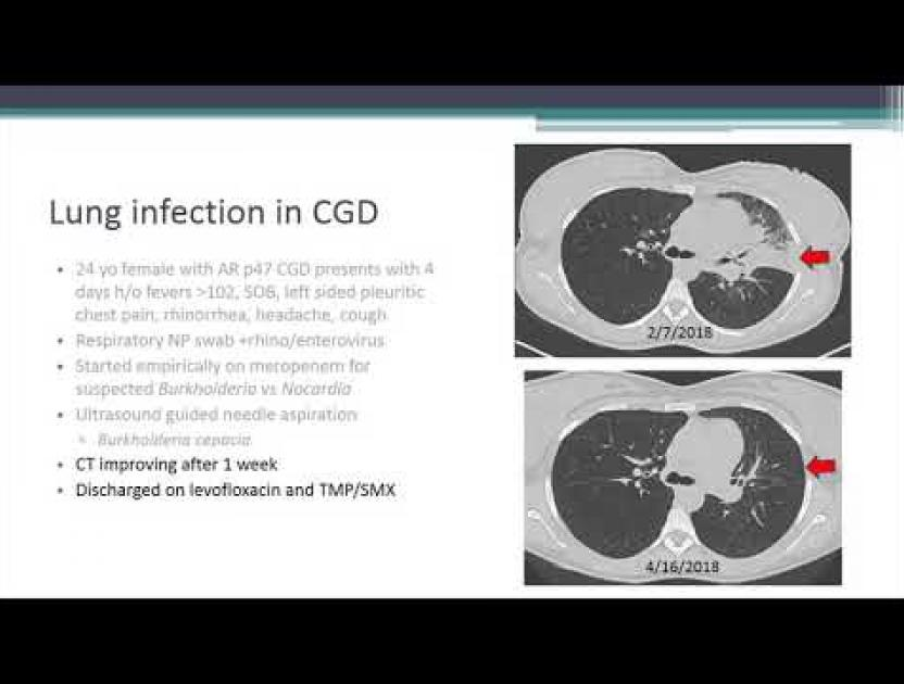 Chronic Granulomatous Disease and Other Phagocytic Cell